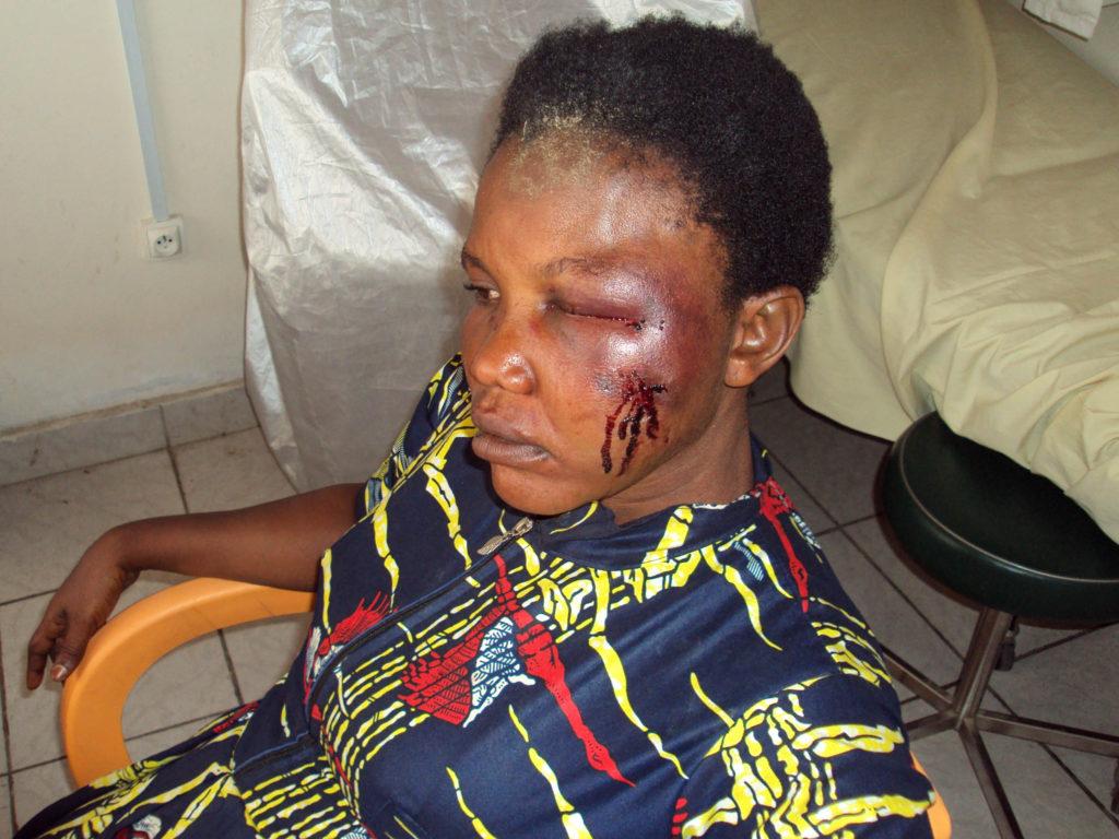 Am Kopf durch Überfall verletzte Frau